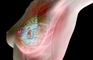 лечение мастопатии в Израиле