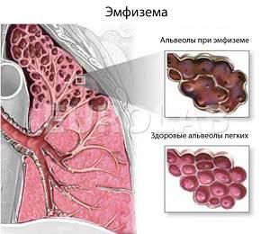 лечение эмфиземы легких в Израиле, лечение эмфиземы в Израиле