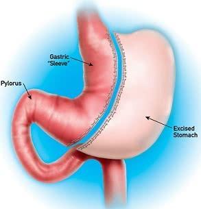 Лечение портальная гипертензия цирроз