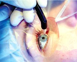 Тест на поле зрения глаза