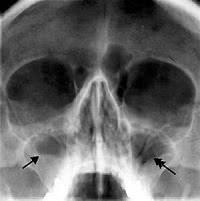 Рентген при лечении гайморита