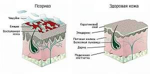 псориаз