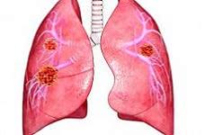 Лечение метастазов легких