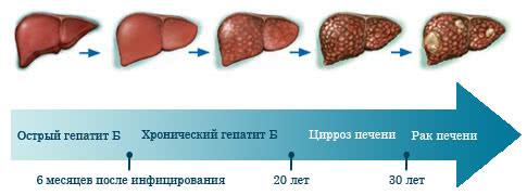 развитие гепатита В