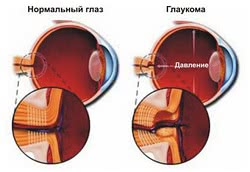 глаукома, Лечение глаукомы в Израиле