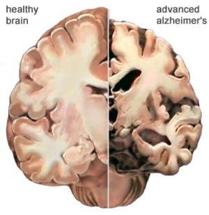 болезнь альцгеймера и здоровый мозг, Лечение болезни Альцгеймера в Израиле