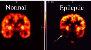 рентген мозга с признаками эпилепсии