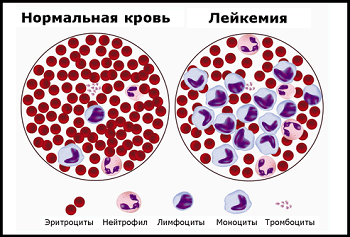 лейкемия и нормальная кровь, Лечение лейкоза в Израиле, Лечение лейкемии в Израиле