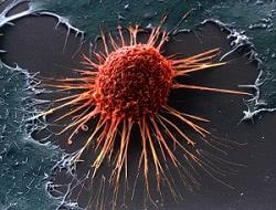 клетки рака, рак