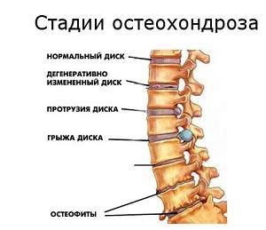 стадии остеохондроза, Лечение остеохондроза в Израиле
