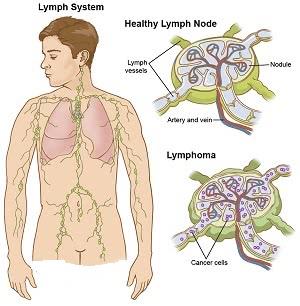 лимфатическая система человека, Лечение лимфомы Ходжкина в Израиле