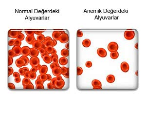 проявление анемии, лечение анемии в израиле