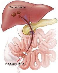 метастазы в печени, карциноид