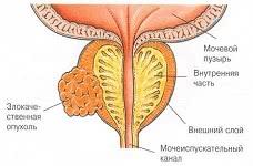 Рак простаты (предстательной железы)