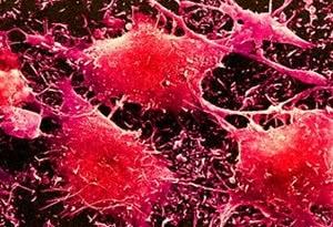 нейробластома
