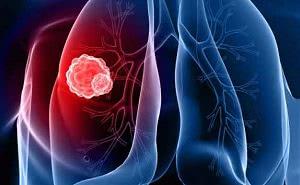диагностика рака легких в Израиле