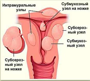 Лечение лейомиомы матки в Израиле