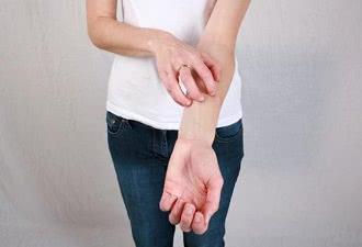 кожный зуд на руке