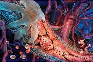 Лечение атеросклероза в Израиле