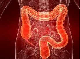 рак толстой кишки, колоректальный рак