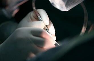 хирургия аневризмы