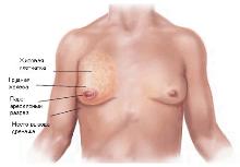 гинекомастия у мужчин