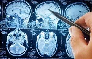 рентгеновские снимки головы