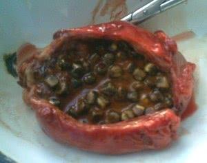 Лечение холецистита