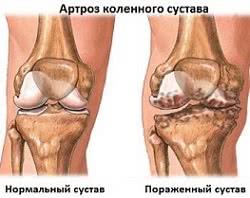 артроз коленного сустава, Лечение артроза в Израиле