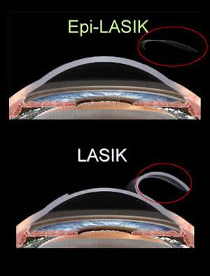 Офтальмология в израиле, лечение глаз в израиле