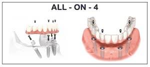 метод имплантации зубов