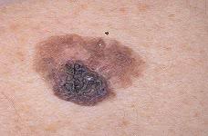 Стоимость лечения меланомы