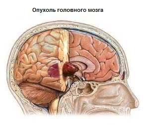Лечение опухолей головного мозга у детей в Израиле