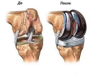Замена коленного сустава в Израиле, Эндопротезирование коленного сустава в Израиле