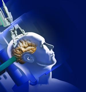 роботизированая операция на головном мозге
