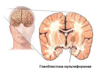 Лечение опухолей центральной нервной системы у детей в Израиле